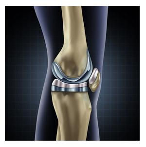 Chirurgie Orthopédique et Traumatologie du sport à Nice - Dr ...