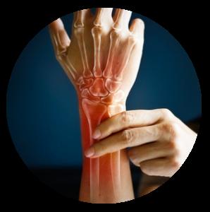 Prothèse unicompartimentale du genou - Dr Clavé Arnaud