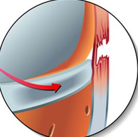 Ligamentoplastie - Dr Clavé Arnaud