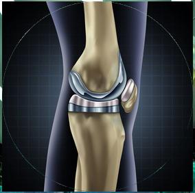 Prothèse de genou - Dr Clavé Arnaud