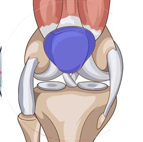 Chirurgie de la rotule - Dr Clavé Arnaud