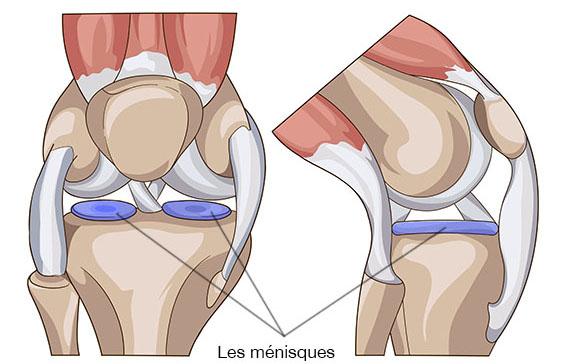 Les ménisques - Dr Clavé Arnaud