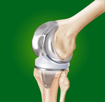 Reprise de prothèse de genou