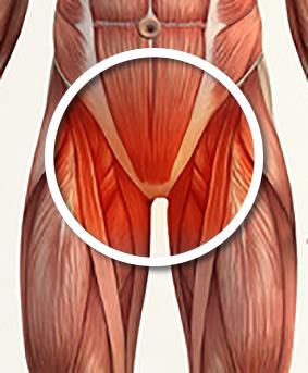 Pubalgie adducteurs et pariéto abdominale