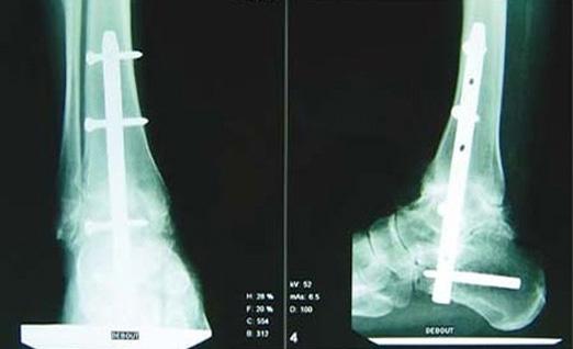 Arthrodèse de cheville - Dr Clavé à Nice