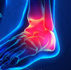 Prothèse de cheville ou arthrodèse - Dr Clavé Arnaud - Nice