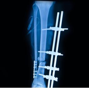 Ostéosynthèse de fracture - Dr Clavé Orthopédiste Nice