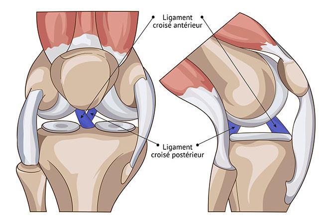 Déchirure des ligaments croisés antérieurs