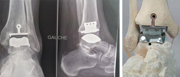 Prothèse de cheville - Dr Clavé à Nice
