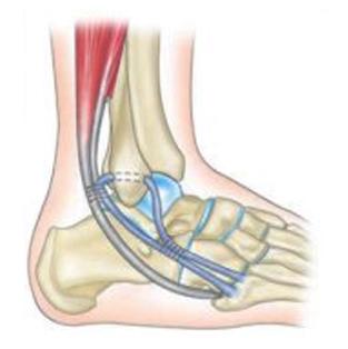 check-out collection entière couleurs délicates Ligamentoplastie cheville - Chirurgie Orthopédique Nice - Dr ...