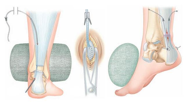 Tenolig - Réparation du tedon d'Achille - Dr Clavé Nice