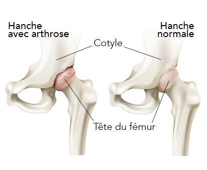 arthrose de la hanche schéma