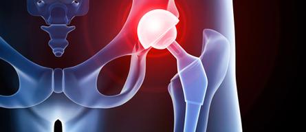 Reprise de prothese de hanche - Dr Arnaud Clavé