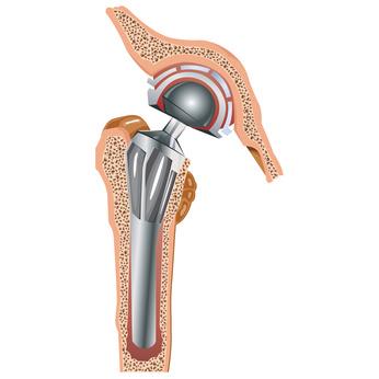 Prothese de hanche - Dr Arnaud Clavé
