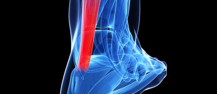 Rupture du tendon d\'Achille - Dr Arnaud Clavé Nice