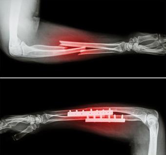 Ostéosynthèse de fracture