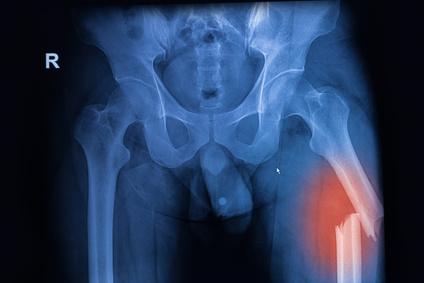 Réparation de fracture - Dr Clavé Arnaud à Nice