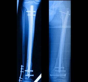 Clous ostéosynthese - Dr Clavé Arnaud Chirurgien orthopédique à Nice