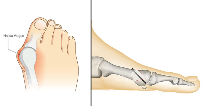 Hallux valgus - Dr Clavé - Chirurgie orthopédique Nice
